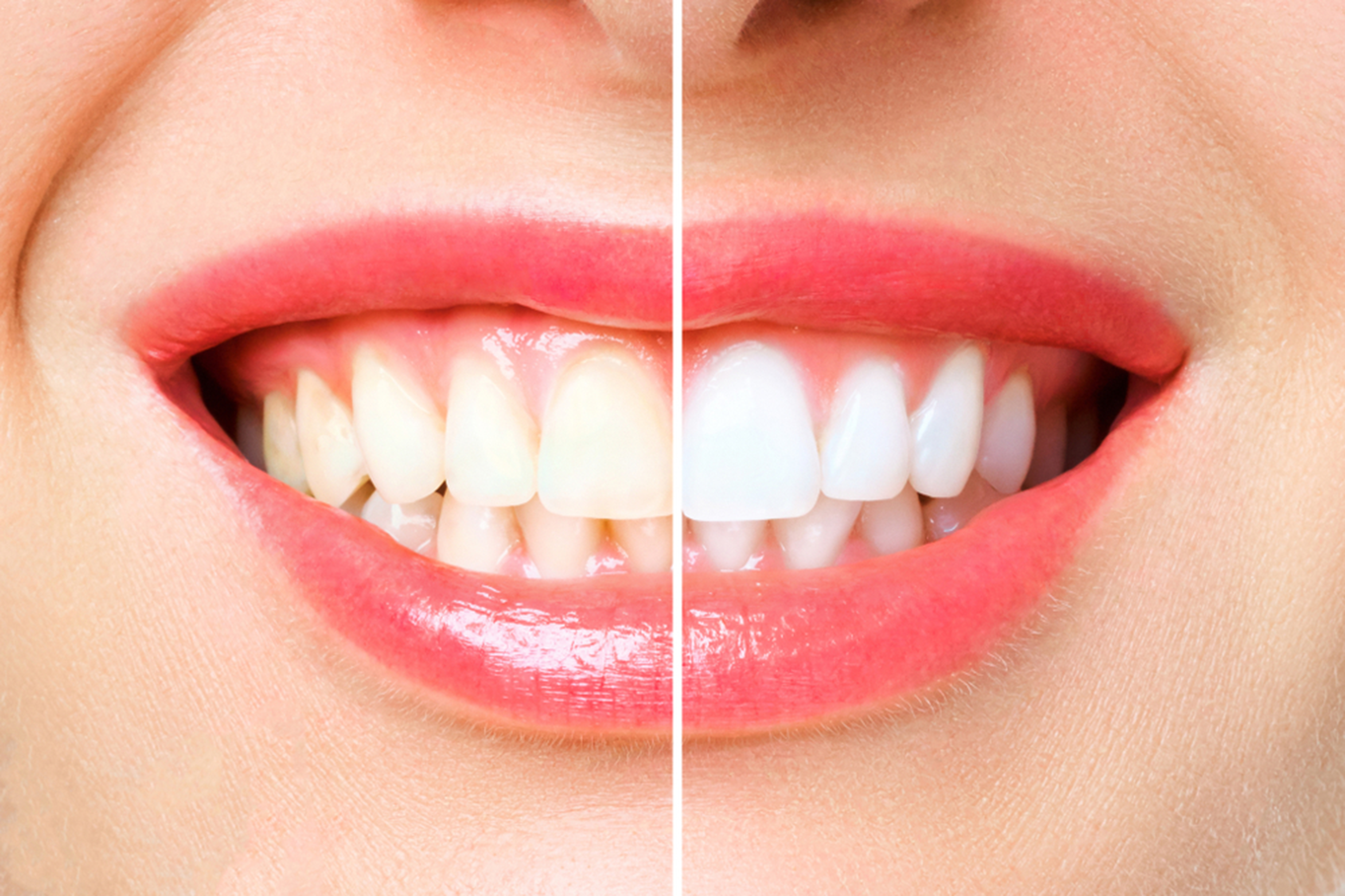 is teeth whitening safe find out how it is done
