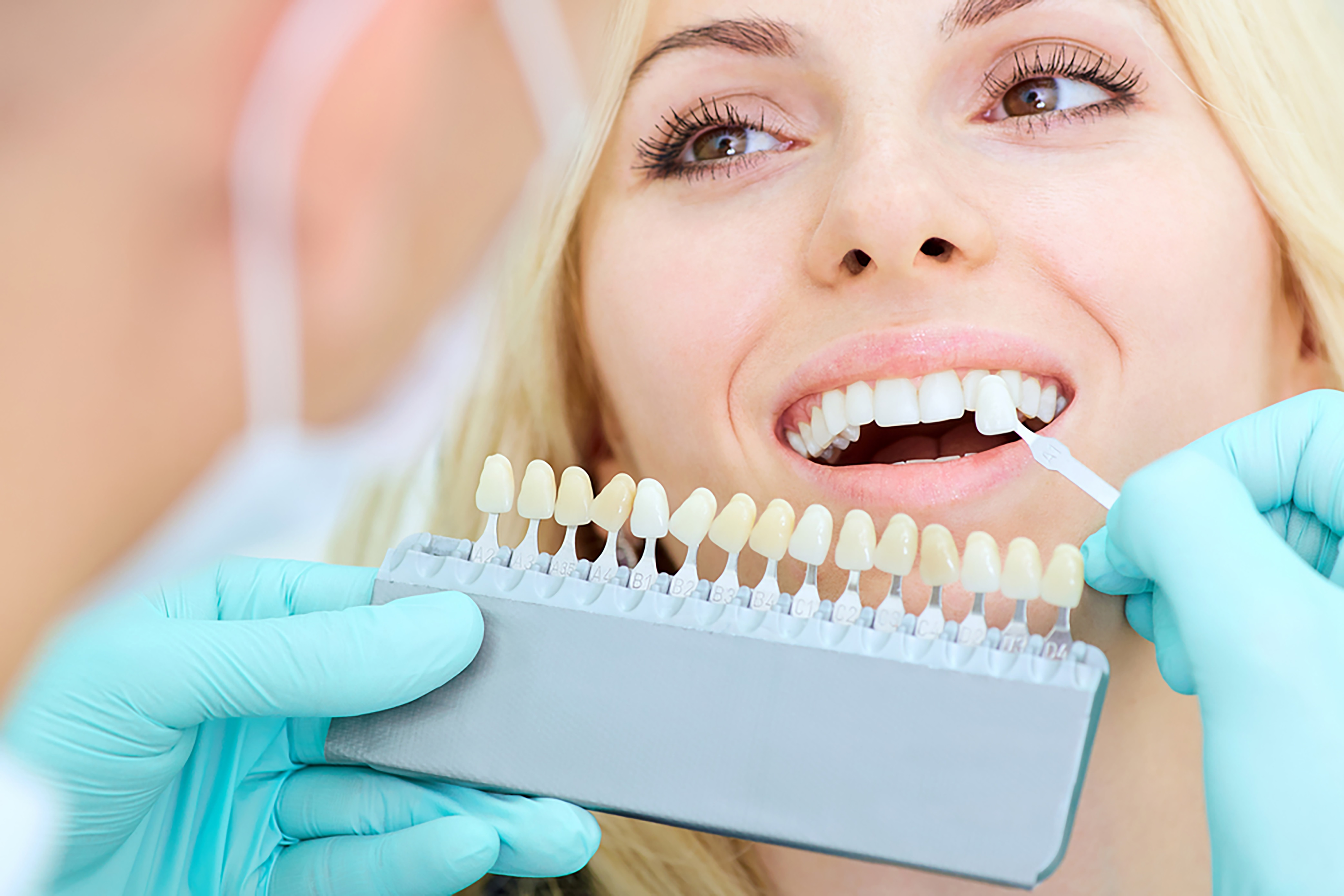 teeth whitening an easy way to transform your smile